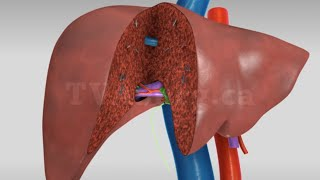 Liver transplant: Living donor right hepatectomy (donor procedure)