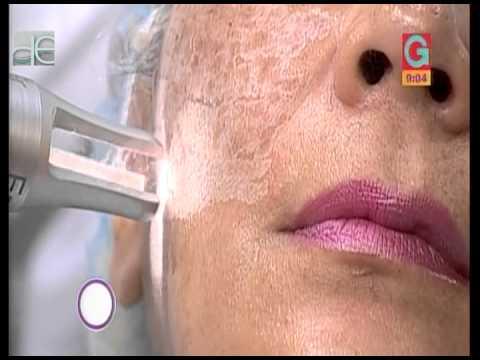 El curso del tratamiento fosfoglivom a la psoriasis
