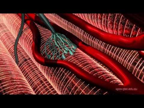 Les muscles comme gonfler le trapèze dans les conditions domestiques