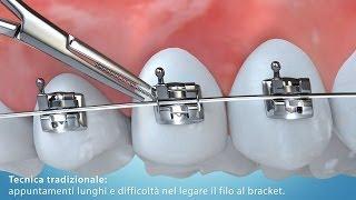Video Animazione 3D tecnica di allineamento dentale con bracket