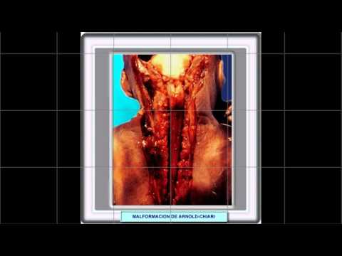 Libri scoliosis prevenzione e trattamento