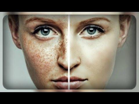 Отбеливание кожи перекисью водорода и нашатырный спирт