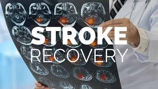 Stroke Recovery | What You Didn't Know About Dental Health Home Care