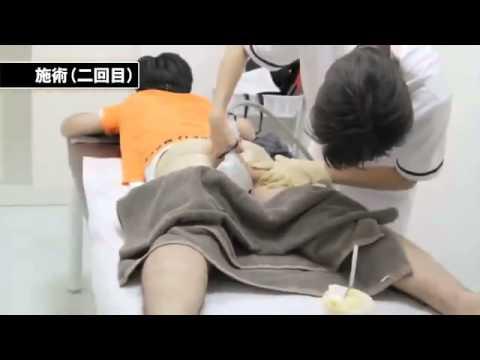 การผ่าตัดอวัยวะเพศชายราคา