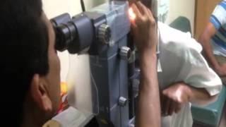 Selective Laser Trabeculoplasty