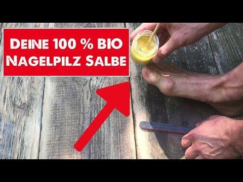 Wie gribok auf dem Nagel des Fingers des Beines zu heilen