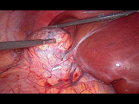 Laparoskopowa prawostronna adrenalektomia z powodu raka kory nadnerczy - procedura w pełnej długości