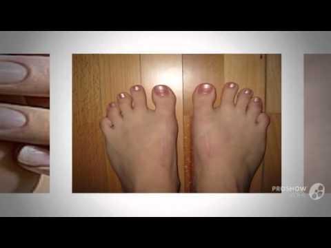 Накладка на косточку на большом пальце ноги