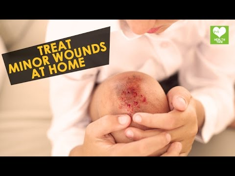 Video Treat Minor Wounds At Home | Health Tips | Education
