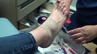 How does ganglion cyst feel? Ganglion Cyst on a Foot
