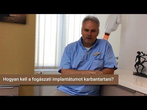 Hogyan kell a fogászati implantátumot karbantartani?