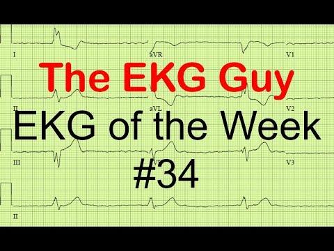 EKG of the Week #34