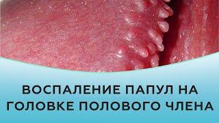 Воспаление папул на головке полового члена