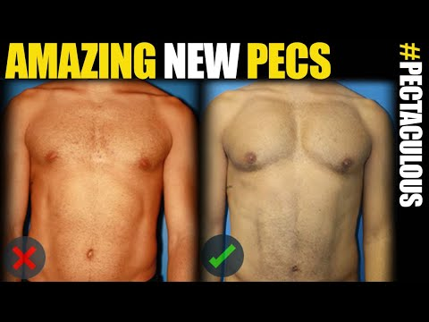 Pec Implants in NYC and LA - Male Plastic Surgery