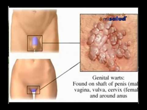 Cancer de cuello uterino sin hpv