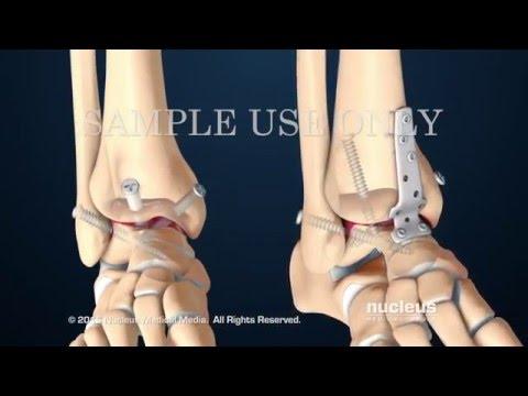Артродез голеностопного сустава с передней фиксацией