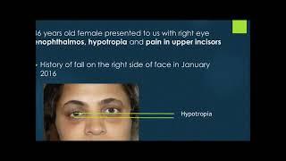 Face Fracture Repair Mumbai India| Orbital Fractures causing Smaller Eye| Dr. Debraj Shome