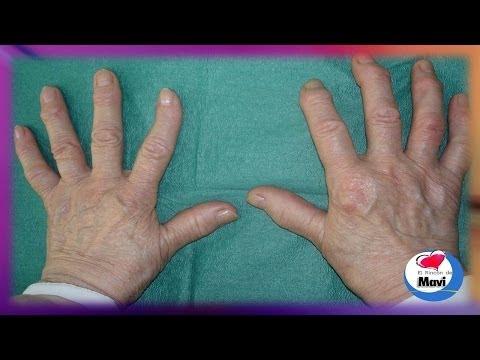 Epicondilitis del codo de ultrasonido