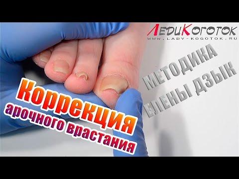 Welches Öl von gribka der Nägel auf den Beinen hilft