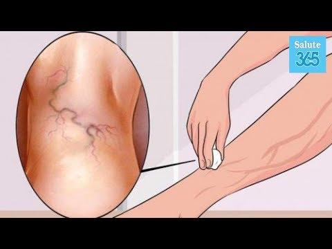 Quali sintomi di thrombophlebitis
