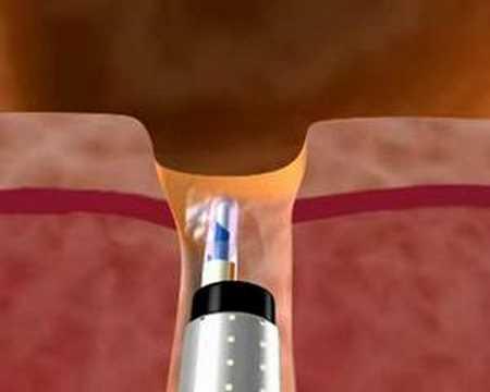 Akupressur mit Prostatakrebs
