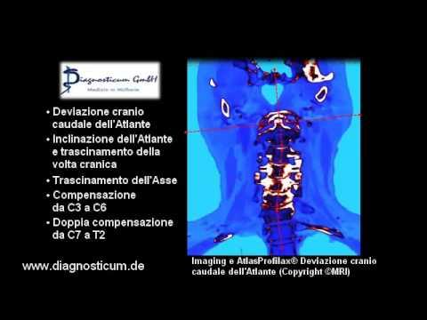Una serie di esercizi con osteoartrosi dellarticolazione dellanca