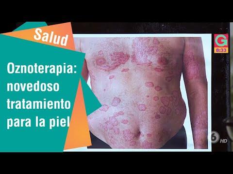 Atopichesky la dermatitis a los niños emolium