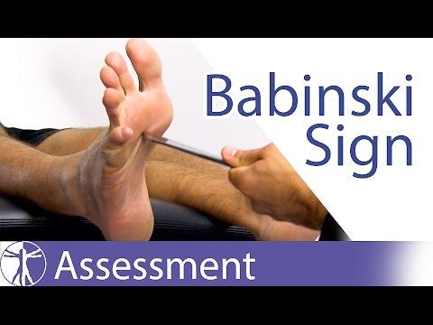 Video The Babinski Sign or Reflex | Upper Motor Neuron Lesion