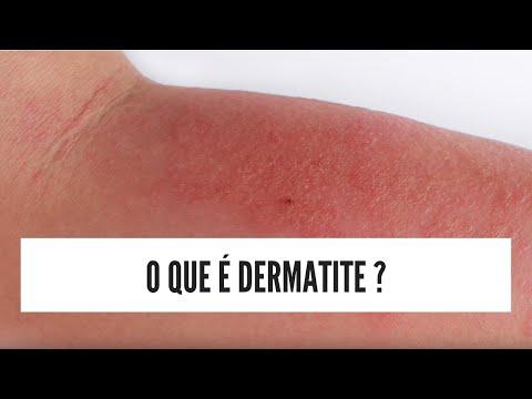 Dermatite de atopic em buldogues