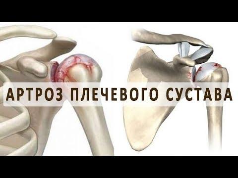 Что нужно знать об артрозе плечевого сустава