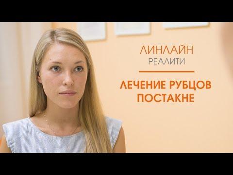 Процедура для лица плазмолифтинг фото
