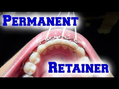 Braces Update: Permanent Retainer