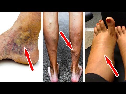 Treat Varicose Veins And Leg Heaviness With Just One Simple Exercise A Day