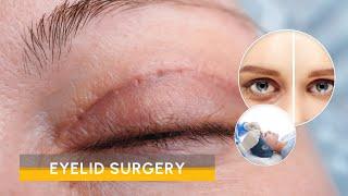 Video Eyelid surgery