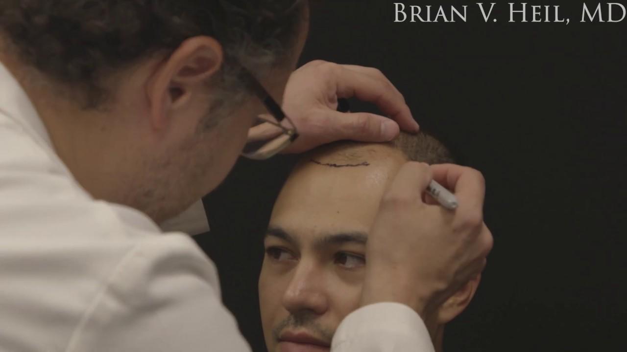 ARTAS Hair Transplant in Pittsburgh, PA