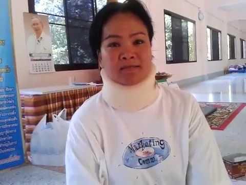 การรักษา thrombophlebitis ของแขนขาลดลง ALMAG
