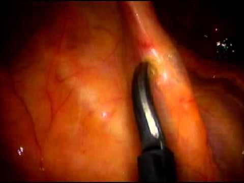 Laparoskopowa resekcja jelita grubego
