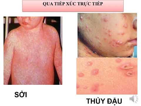 Chủ đề: Virut và bệnh truyền nhiễm