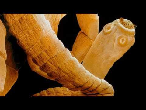 Трихинеллы фото паразита