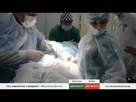 Варикоцеле: Операция