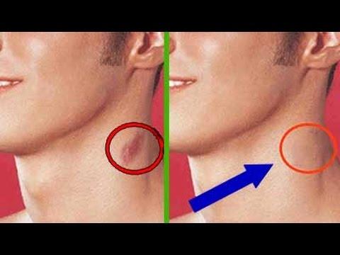 El aumento del pecho nastroyami sytina