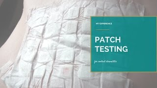 My Patch Testing Experience for Allergic Contact Dermatitis { Emily Jayne Weekly Vlog 25 }