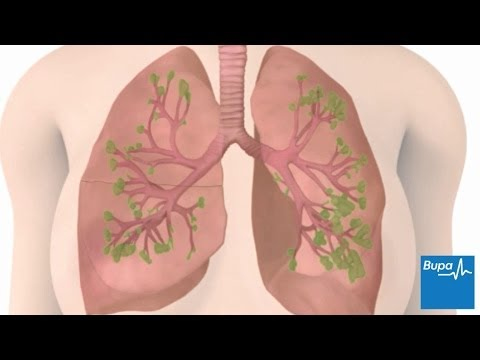 Video How chronic obstructive pulmonary disease (COPD) develops