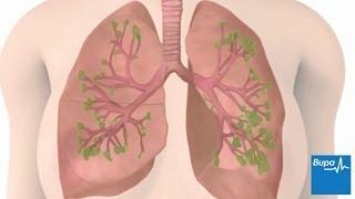 Chronic obstructive pulmonary disease (COPD) | Bupa UK