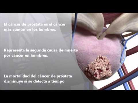 Patogenesi del cancro alla prostata che è