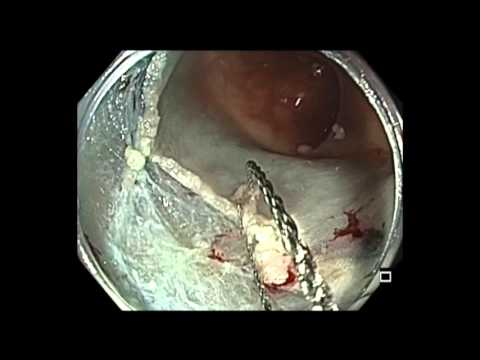 Colonoscopy: Sigmoid Colon Polyp EMR