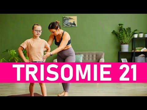 Watch videoGlücklich mit Down-Syndrom Kindern