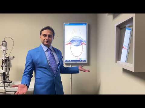 Az egyik szem szürkehályog-látása helyreállhat