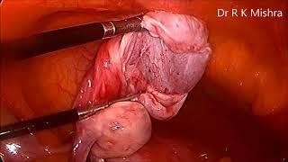 Ovarian cystectomy for Left Ovarian Cyst
