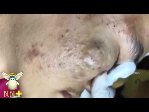 Cystic Acne, Pimples And Blackheads Extraction Treatment On Face!